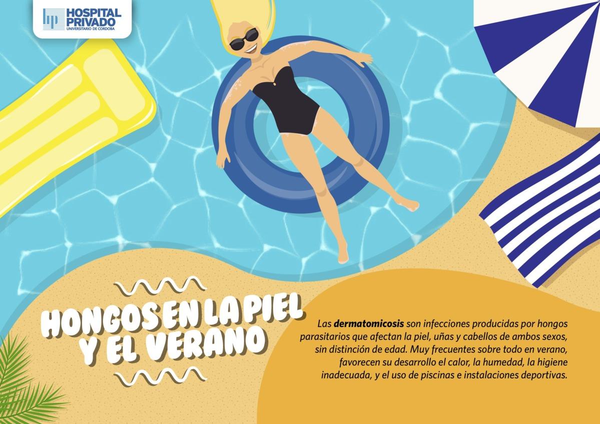 Hongos en la piel y el verano for Hongos de piscina